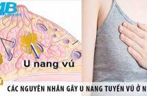 Các nguyên nhân gây u nang tuyến vú ở nữ giới